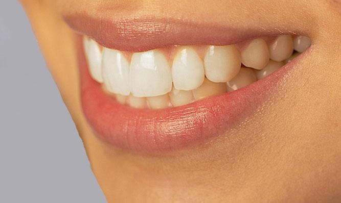 Виниры на кривые зубы стоматология имплант вставить стоимость